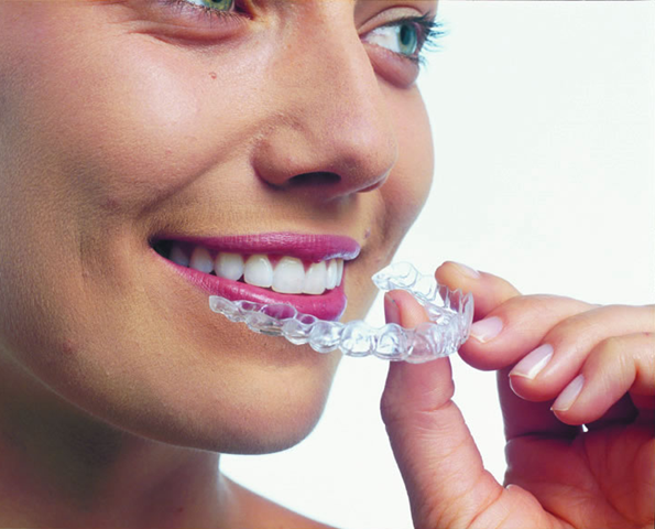 invisalign4.png