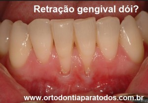 retracao gengival